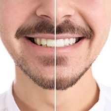 How to Whiten Teeth Without Damaging Enamel?