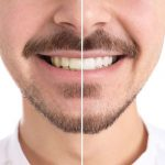 How to Whiten Teeth Without Damaging Enamel?